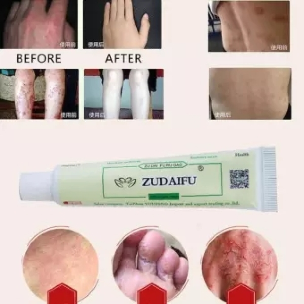 ZUDAIFU Natural Chinese Herbal Medicine Cream Eczema Dermatitis Psoriasis Vitiligo Antibacterial Skin Disease Treatment