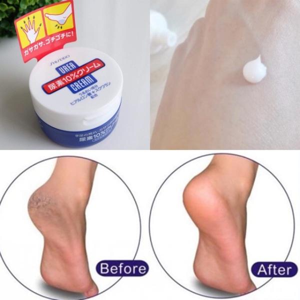 Kem nứt gót shiseido urea cream