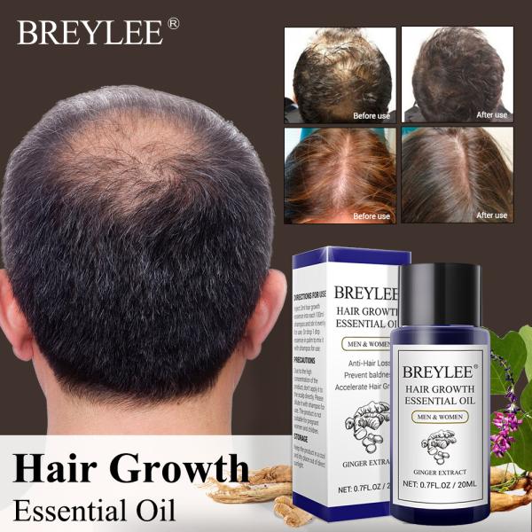 BREYLEE Hair Growth Essential Oil 20ML Hair Grower Serum Hair Care Products Hair Enhancer