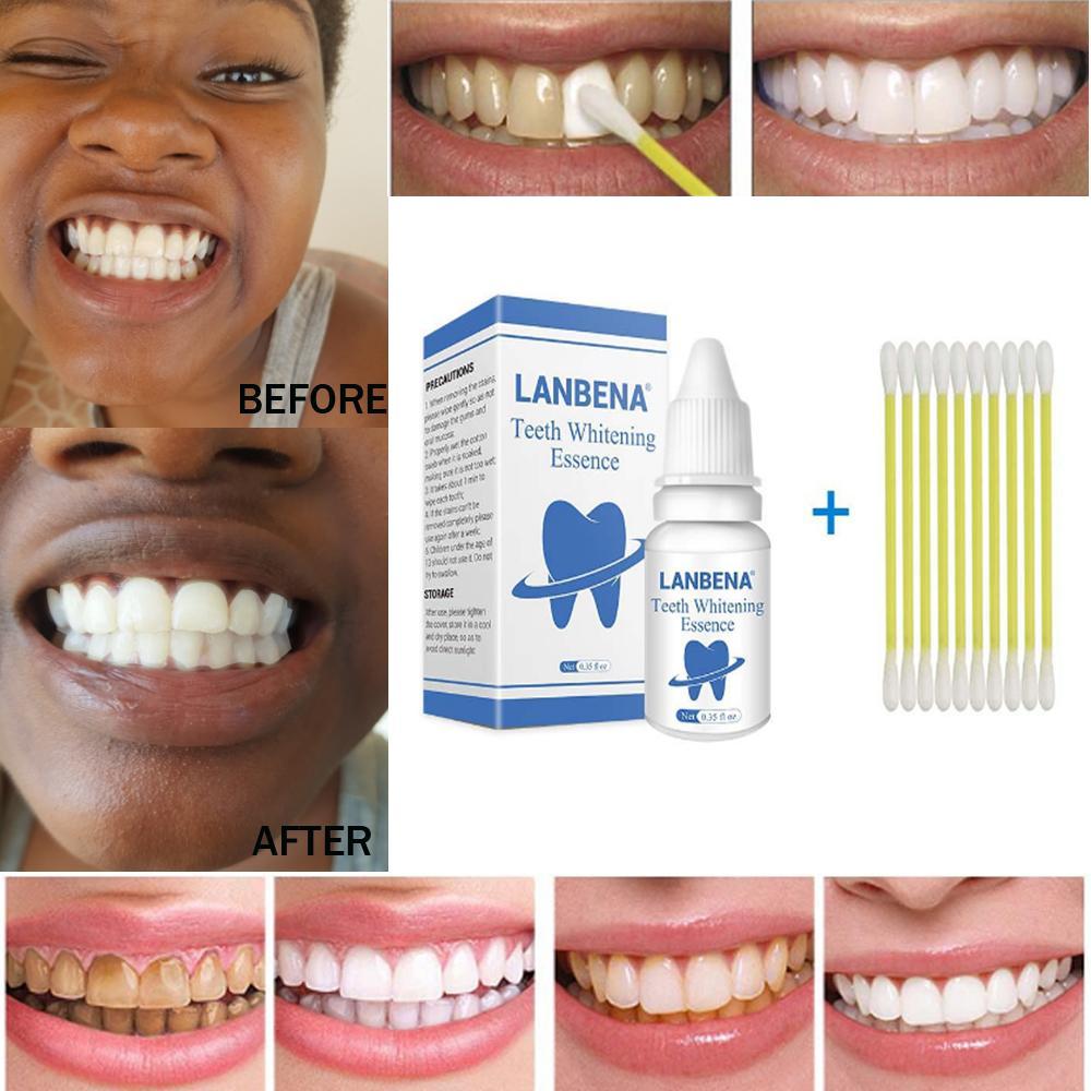 TRẮNG RĂNG Teeth clean spot cleaning LÀM SẠCH RĂNG teeth whitening  TRẮNG RĂNG teeth White Intensive Whitening Treatment nhập khẩu