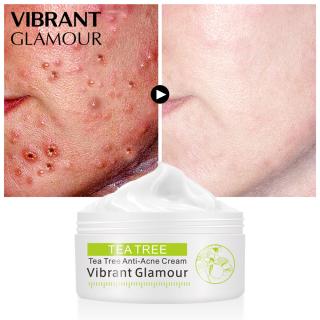 Kem dưỡng da mặt trà xanh VIBRANT GLAMOR chống mụn làm trắng kiểm soát dầu thu nhỏ lỗ chân lông, mờ sẹo - INTL thumbnail