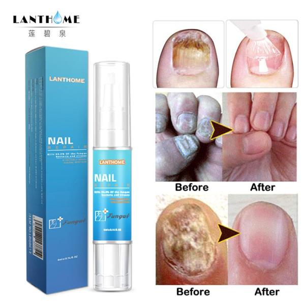 Nail Fungus Repair Treatment Pen Products Onychomycosis Paronychia Anti Fungal Nail Infection Chinese Herbal Care Oil Pen giá rẻ