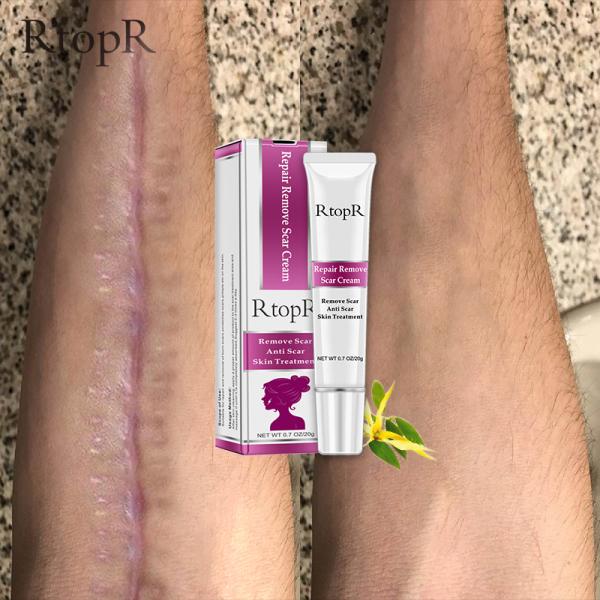 RtopR Acne Scar Stretch Marks Remover Cream Skin Repair Face Cream Acne Spots Acne Treatment Blackhead Whitening Cream Skin Care cao cấp
