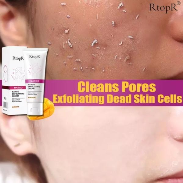 RtopR Kem tẩy tế bào chết làm sạch da mặt. loại bỏ mụn đầu đen dưỡng da mặt giá siêu tốt/40g