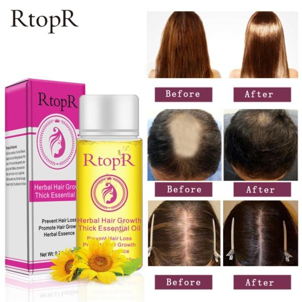RtopR Thảo Dược Tăng trưởng tóc Chống Rụng Tóc chất lỏng thúc đẩy dày nhanh điều trị tăng trưởng tóc 20ml Tinh dầu chăm Herbal Hair Growth Thick Essential Oil