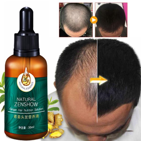 Nước dinh dưỡng tóc gừng 【30ml】Ngăn rụng tóc và dưỡng tóc  Kích thích mọc tóc  Gốc tóc vững chắc và tóc khỏe mạnh giá rẻ