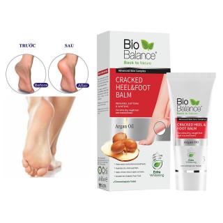 Kem giảm nứt gót chân Bio balance 60ml thumbnail