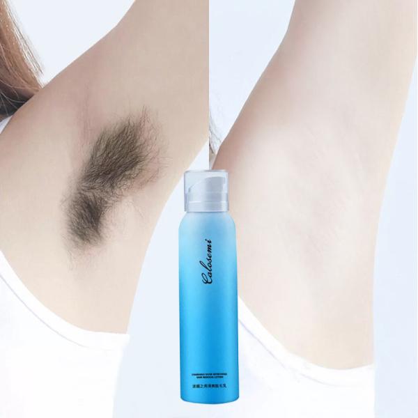 Xịt tẩy lông vĩnh viễn mới  Kem tấy lông mịn màng【150ml】 Kìm hãm sự phát triển của lông Dụng cho các nơi của coe thể (vùng kín chân tay nách bụng ngực lưng...)