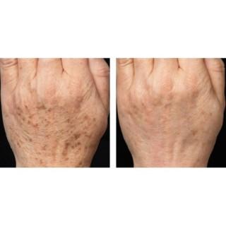 Kem tri đồi mồi Kem dưỡng da tay giúp da trắng sáng mờ đồi mồi tay chân 6