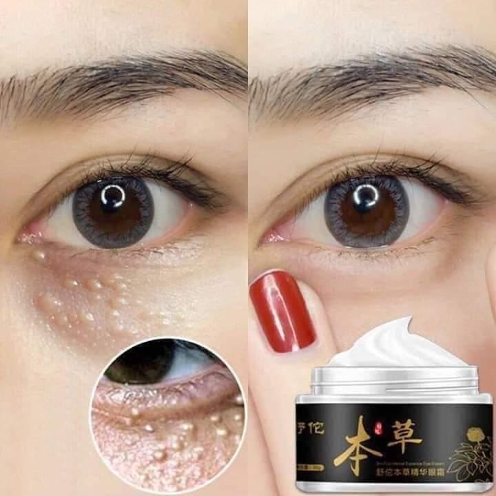 Kem đặc trị mụn thịt vùng mắt