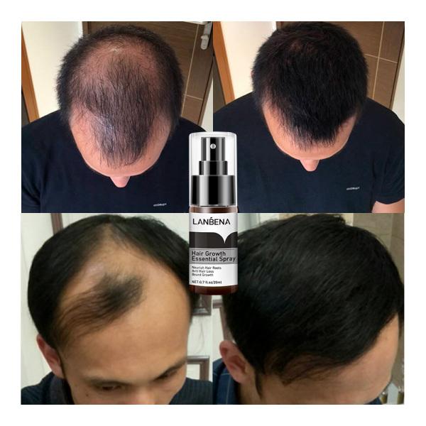 LANBENA Xịt tinh chất mọc tóc Ngăn ngừa hói đầu Tăng cường chân tóc Ngăn rụng tóc Nuôi dưỡng chân tóc Dễ dàng mang theo Chăm sóc tóc