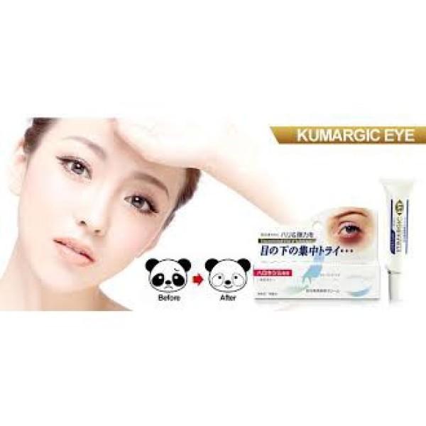 Kem trị thâm quầng mắt kem trị thâm quầng mắt Kumargic Eye Nhật Bản đảm bảo cung cấp các sản phẩm đang được săn đón trên thị trường hiện nay
