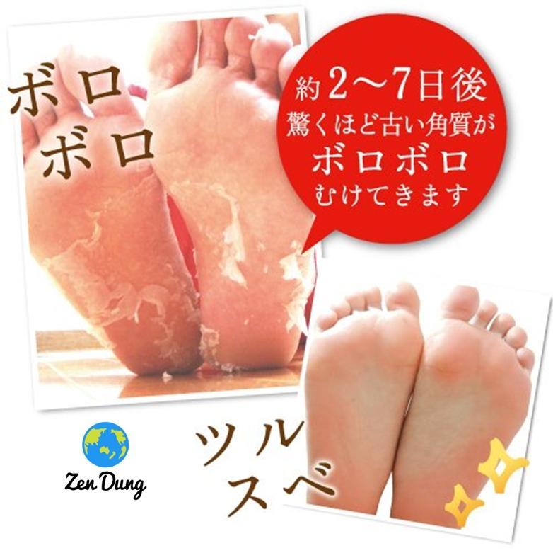 Túi ủ Baby foot Nhật Bản chữa chai chân nứt nẻ chân bán chạy nhất thế giới tốt nhất