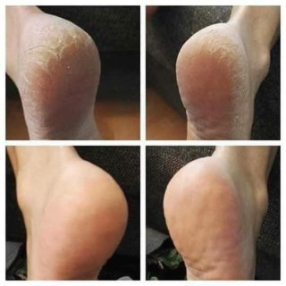 Kem Tri nứt gót chân Nga Kem làm liền vết nứt chân tay Kem dưỡng da làm mềm da 2
