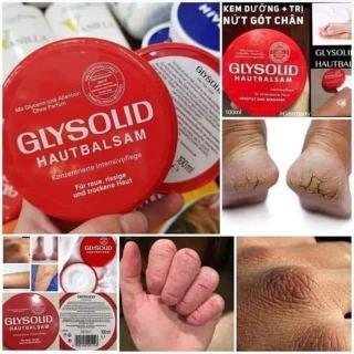 KEM DƯỠNG TRỊ NỨT, Á SỪNG DA TAY, DA CHÂN GLYSOLID ĐỎ HAUTBALSAM ( Made in Germany ) thumbnail
