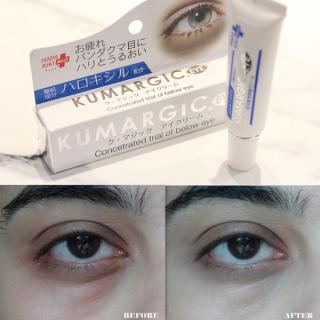 Kem giảm thâm quầng mắt Super Kumargic EX Eye 20g - Nhật Bản thumbnail