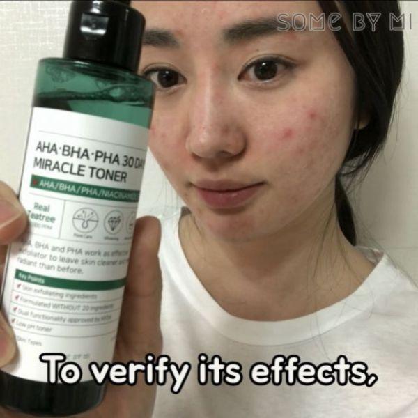 Miracle Toner Hàn Quốc trị mụn và thâm sau 30 ngày tốt nhất