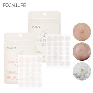 Focallure Spot Patch Acne Treatment Blemish Treatment Skin Care Acne Repair Acne Pimple Patch Face Mask 24 cái thumbnail