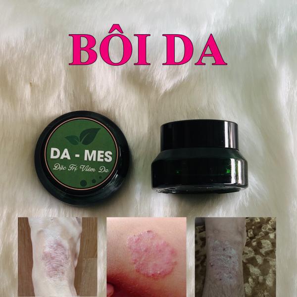 Bôi da DDAAMES Viêm da, vẩy nến, á sừng, hắc lào, nấm da các loại