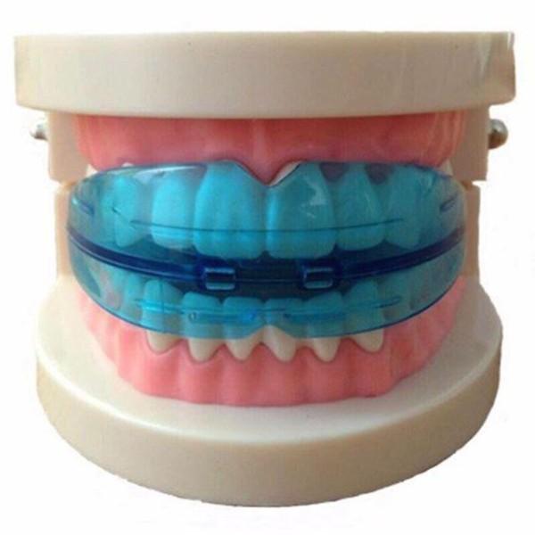 Niềng răng silicon bảo vệ răng ( KTN) giá rẻ