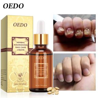 OEDO Tinh chất dưỡng móng tay và móng chân loại bỏ nấm nhiễm trùng - INTL thumbnail