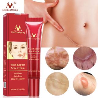 MeiYanQiong Kem chữa rạn da, sẹo giúp đẩy nhanh quá trình tái tạo tế bào, làm mờ các vết thâm, sẹo do mụn thumbnail