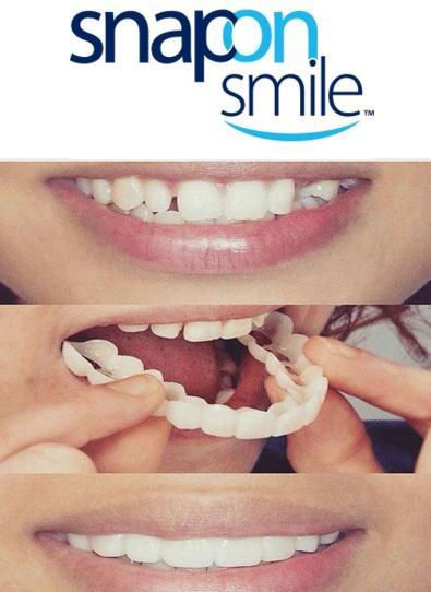 Răng giả Snap on smile - BTC01 nhập khẩu