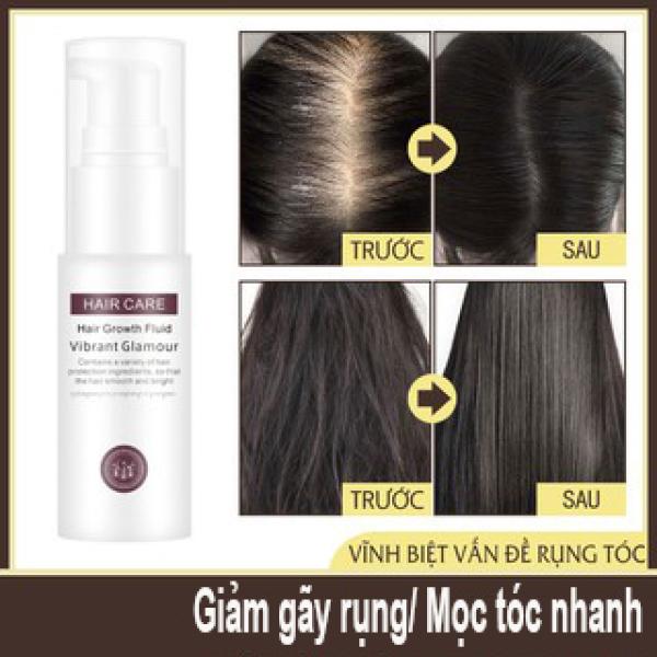 [HCM]Tinh chất mọc tóc ngăn ngừa rụng tóc chai tinh dầu giúp tóc mọc nhanh hơn hiệu quả hơn chống rụng tóc Tinh chất tăng trưởng tóc Hair Grower Dầu xả tóc Tinh chất ngăn ngừa rụng tóc cho nam và nữ 30ML
