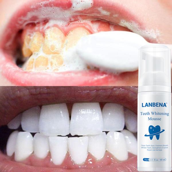 LANBENA trắng răng Bột đánh Răng Thảo Dược An Toàn Hoàn Hảo Nụ Cười Vệ Sinh Răng Miệng Làm Sáng giá rẻ