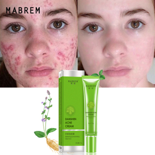 MABREM Acne Treatment Skin Care Remove Acne Oil Control Oil Shrink Pores Whitening And Moisturizing Scar Removal Facial Cream thumbnail