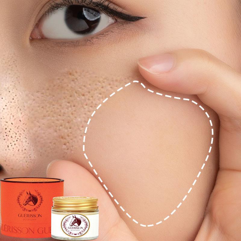 Kem Dưỡng trắng hiệu quả Chống nhăn, dưỡng ẩm, không bết dính, không gây kích ứng giúp làm trắng da từ sâu bên trong, kem dưỡng trắng da chống lão hóa, tái tạo da nhanh giúp se khít lỗ chân lông 50ml giá rẻ