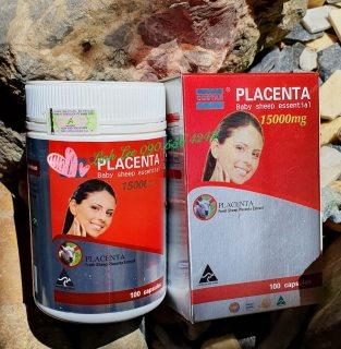 Viên nhau thai cừu Placentra Baby Sheep Essential Costar 15000mg (100 viên) thumbnail