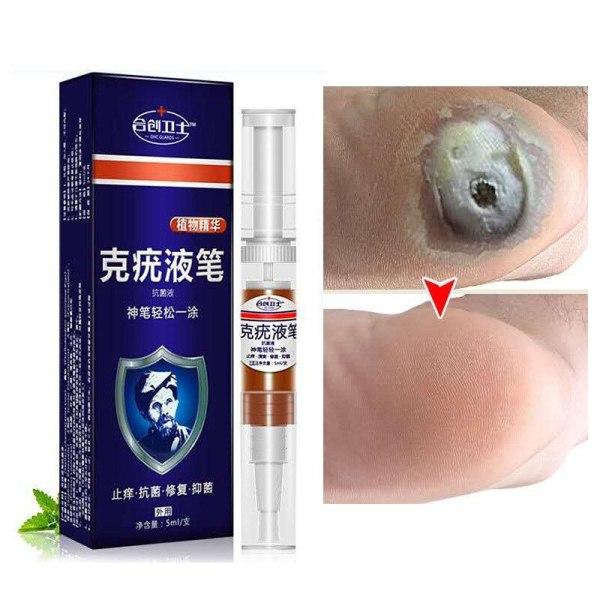 Bút lỏng trị mụn Hechuang Weishi Ke để loại bỏ gai thịt và mụn cóc, kem sửa chữa bàn tay, khỉ và bàn chân