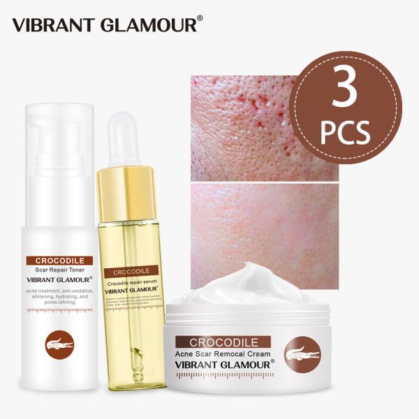 VIBRANT GLAMOUR thu nhỏ lỗ chân lông làm sáng da giảm nhạy cảm loại bỏ mụn và vết thâm - INTL