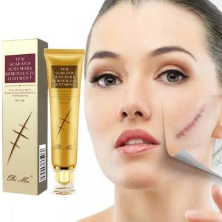 Kem dưỡng sẹo Peimei, chứa tinh dầu thực vật giúp nuôi dưỡng làn da, mờ sẹo, tăng cường sức sống cho da và cải thiện độ đàn hồi của da thumbnail