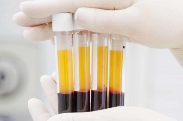 hộp 100 Ống nghiệm ACD dùng lấy máu chân không sẵn chất chống đông dùng trong PRP 8,5ml hàng USA cao cấp