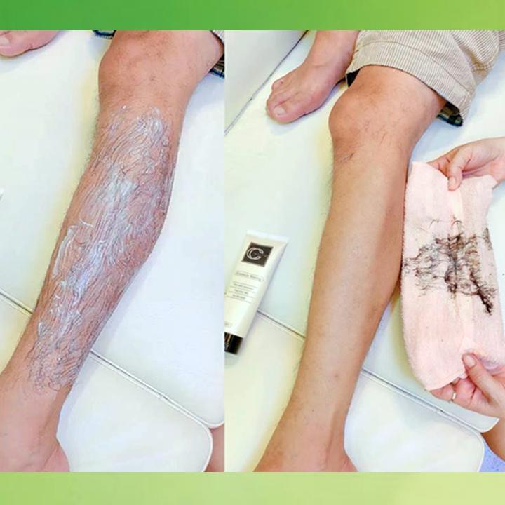 Kem tẩy lông CC White, Tẩy lông chân, Tẩy lông vùng kín - 100ml
