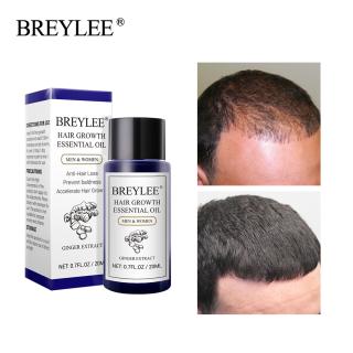 BREYLEE Tinh dầu mọc tóc Cải thiện tình trạng rụng tóc Chăm sóc tóc Mọc tóc Tinh dầu gừng thảo mộc Dưỡng tóc Ngăn ngừa rụng tóc Chăm sóc tóc 20ml thumbnail