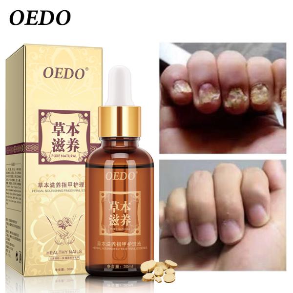 OEDO Tinh chất thiết yếu điều trị Nấm Thảo Dược làm trắng tay và chân móng chân loại bỏ nấm nhiễm trùng chăm sóc chân Serum giá rẻ