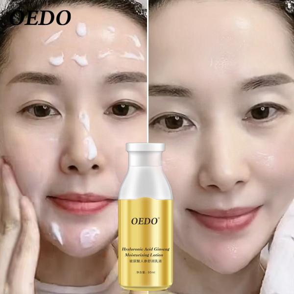 OEDO Kem dưỡng ẩm nhân sâm chứa Hyaluronic Acid chăm sóc da làm trắng điều mụn và kiểm soát dầu - INTL giá rẻ