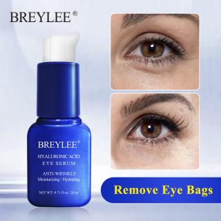 Kem trị mụn BREYLEE Hyaluronic Acid 40g phục hồi da tổn thương làm trắng dưỡng ẩm 24h - INTL thumbnail