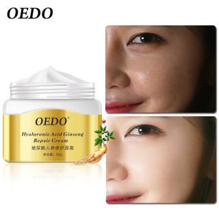 Kem trị mụn OEDO chứa Hyaluronic Acid, loại bỏ và kiểm soát dầu, chăm sóc da chiết xuất từ nhân sâm - INTL thumbnail