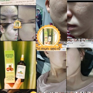 Thảo dược sạch mụn- nám tàn nhan(50ml) thumbnail