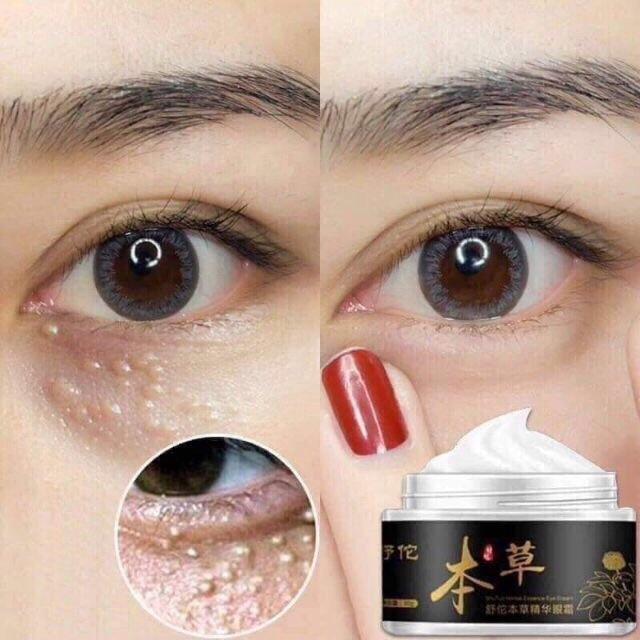 Kem thảo dược trị mụn thịt vùng mắt hũ nhỏ 30g