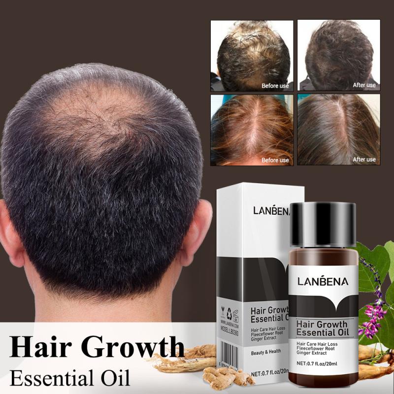 LANBENA Mọc tóc Tinh dầu gừng thảo mộc Dưỡng tóc Ngăn ngừa rụng tóc Chăm sóc tóc 20ml