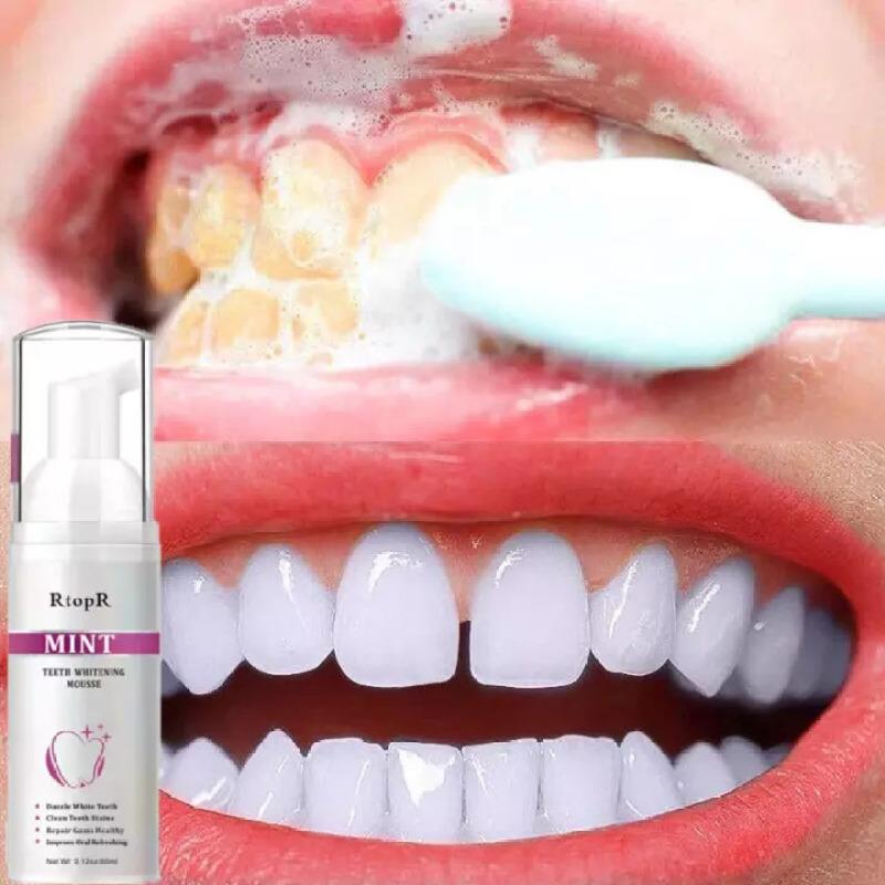 RtopR Bọt Tẩy Trắng Răng Làm Sạch Răng Khử Mùi Hôi Miệng Mousse Teeth Whitening Clean Teeth 60ml