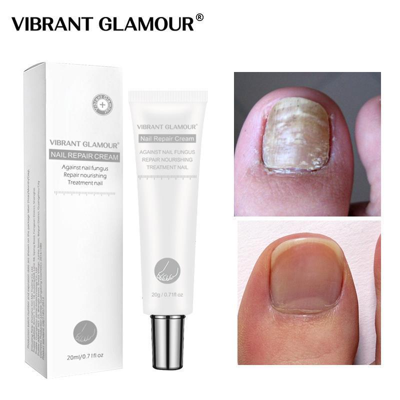 Nail Repair Serum Spot Nail Treatment Onychomycosis Liquid Hand Foot Care Nail Repair Essence 20ML