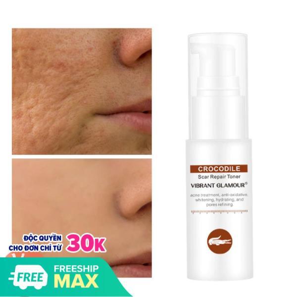 VIBRANT GLAMOUR Serum Tri Mụn Tri Sẹo Phục Hồi Da Sẹo Rỗ Làm Mờ Vết Thâm Loại Bỏ Sẹo Kiềm Dầu VG Skin Care Scar Treatment Repair Toner Serum