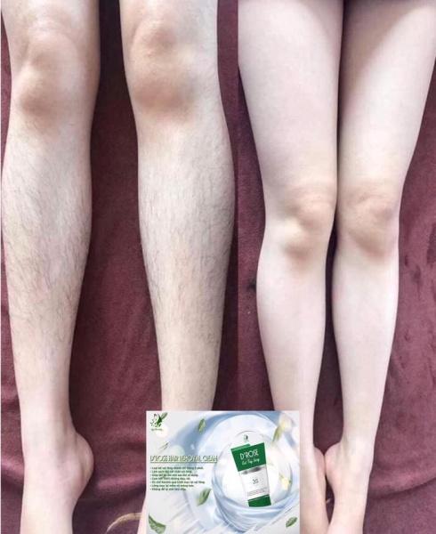 gel tẩy lông, dưỡng trắng,không đau, không rát, triet long DROSE