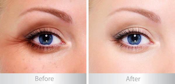 total-eye-care-spf15-15ml-kem-duong-vung-mat